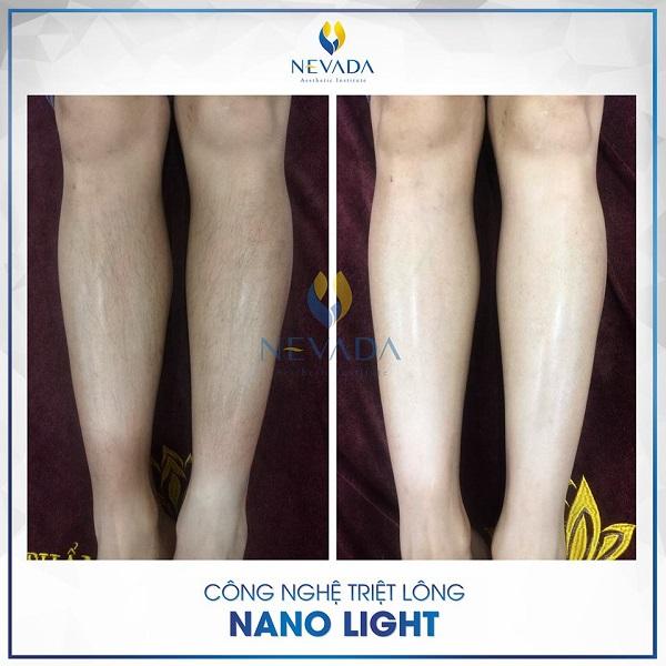 triệt lông công nghệ Nano Light