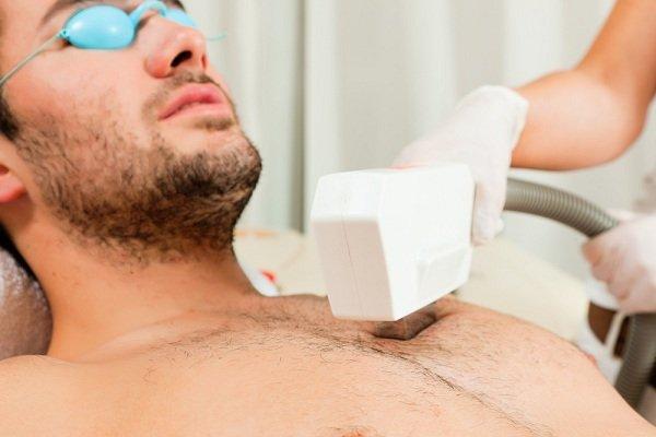 cách tẩy lông bụng cho nam giới