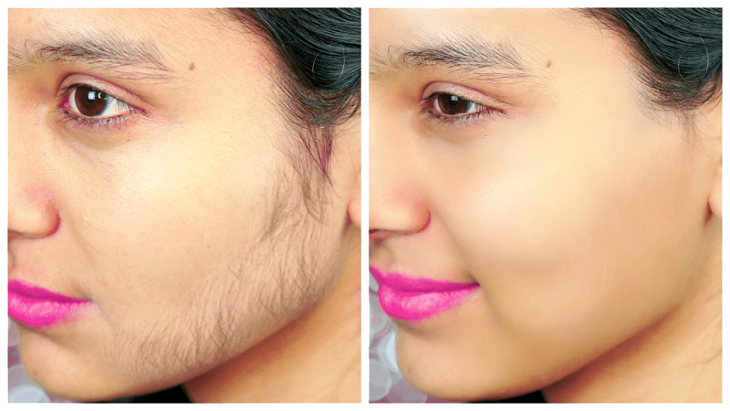 Triệt lông mặt vĩnh viễn có đau không? [Chuyên gia tư vấn chi tiết]