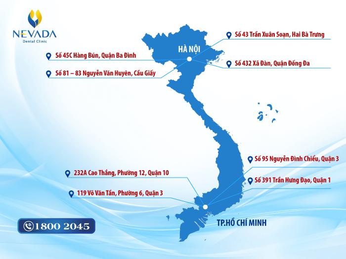 Triệt lông vĩnh viễn ở đâu tốt? Review các địa chỉ tại Hà Nội và TP.HCM