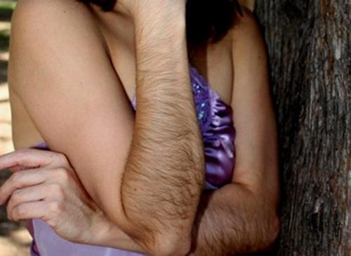 con gái nhiều lông tay chân