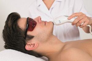 Triệt lông mặt vĩnh viễn cho nam giới bằng công nghệ cao hiệu quả