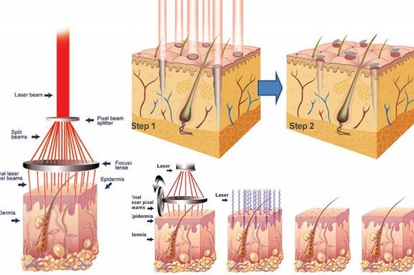 công nghệ triệt lông laser diode