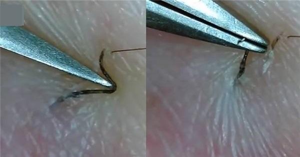 lông mọc ngược phải làm sao, lông mọc ngược ở chân phải làm sao, trị lông mọc ngược ở chân, cách trị lông mọc ngược ở chân, lông mọc ngược, triệt lông tay vĩnh viễn, triệt lông chân vĩnh viễn, triệt lông tận gốc, công nghệ nano light