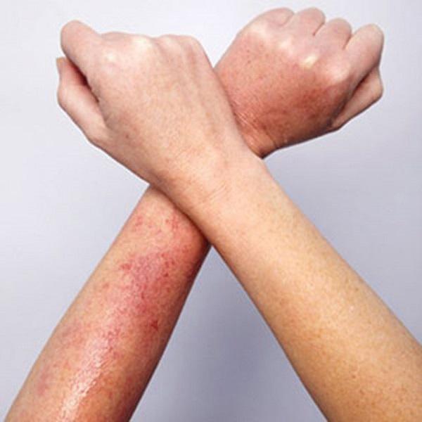 tác hại khi cạo, nhổ lông