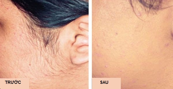 Từng bỏng da vì đốt lông, cô gái 18 tuổi lấy lại niềm tin bằng một phương pháp mới