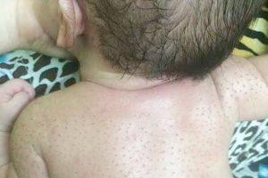 Cách trị lông đẹn ở trẻ sơ sinh như thế nào là đúng và không gây hại