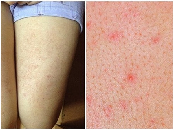Từng bị viêm nang lông có triệt lông vĩnh viễn được không, viêm nang lông có triệt lông chân vĩnh viễn
