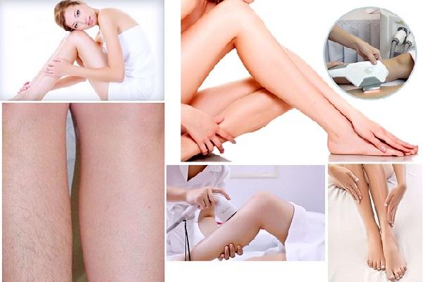 Từng bị viêm nang lông có triệt lông chân vĩnh viễn bằng công nghệ Nano Light được không?