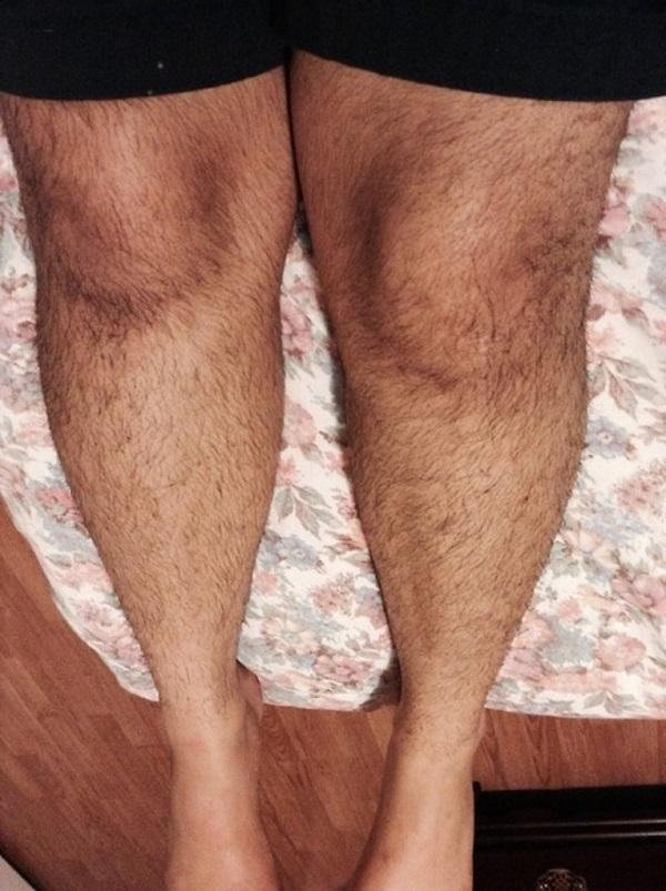 triệt lông chân nam giới, tẩy lông chân nam, triệt lông chân cho nam, tẩy lông chân cho nam giới, triệt lông chân vĩnh viễn cho nam giới, triệt lông chân nam vĩnh viễn, triệt lông chân cho nam giới, tẩy lông chân cho đàn ông, triệt lông chân ở nam giới