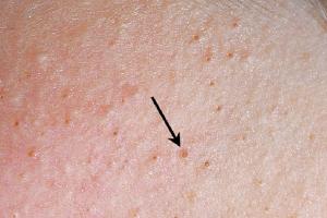 Viêm nang lông là gì? Viêm lỗ chân lông có chữa khỏi được không?