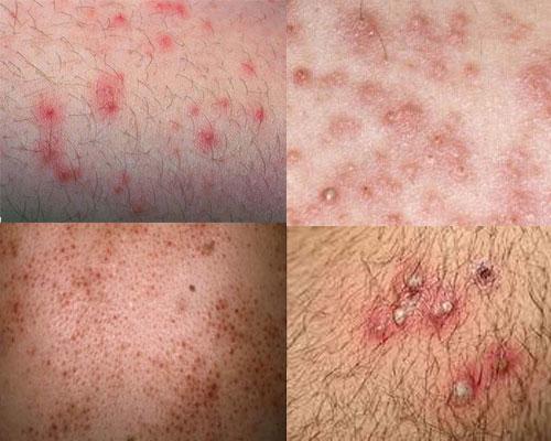 viêm nang lông, viêm lỗ chân lông, viêm nang lông là gì, viêm lỗ chân lông là gì, tại sao bị viêm lỗ chân lông, viêm nang lông gây rụng tóc, viêm nang lông vùng kín có nguy hiểm không, bị viêm nang lông phải làm sao, viêm lỗ chân lông có chữa khỏi được không