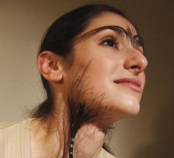 nguyên nhân rậm lông