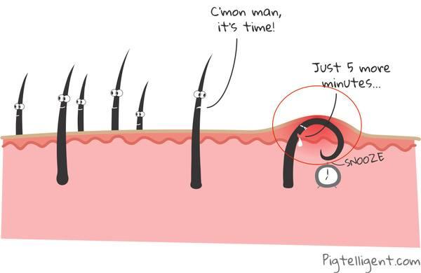 tại sao lông mọc ngược, vì sao lông mọc ngược, tại sao bị lông mọc ngược, tại sao có lông mọc ngược, lông mọc ngược sau khi wax, trị lông mọc ngược, cách trị lông mọc ngược lông, mọc ngược là sao, nhổ lông mọc ngược, trị lông mọc ngược tại nhà, tại sao lông mọc ngược vào trong