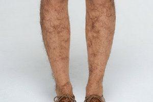 Lông chân bị quặm xoắn có triệt lông bằng công nghệ Nano Light được không?