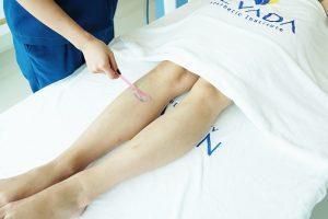 Triệt lông chân vĩnh viễn có hại không? Chuyên gia tư vấn
