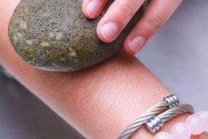 Triệt lông tay bằng đá cuội có được hay không? hiệu quả đến đâu?