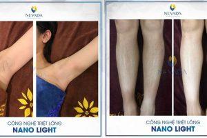 Hiệu quả khi triệt lông vĩnh viễn bằng công nghệ Nano Light sẽ khiến bạn phải bất ngờ