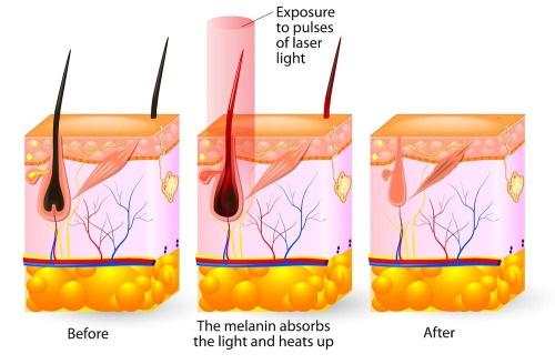 công nghệ triệt lông Nano Light có triệt lông vùng kín được không
