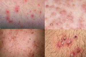 Triệu chứng viêm lỗ chân lông ở nách và cách điều trị hiệu quả nhất