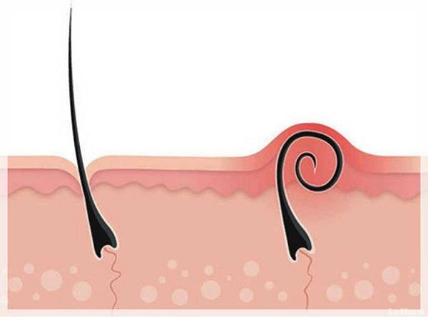 Nhổ lông nách có bị ung thư không?