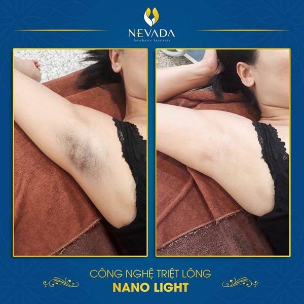 Triệt lông nách Nano Light có hết thâm nách không?