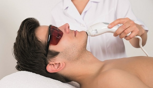 Triệt râu có ảnh hưởng gì không | Triệt râu vĩnh viễn giá bao nhiêu?