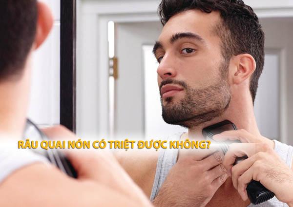 Tại sao không nên để râu quai nón? Râu quai nón có triệt được không?