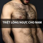 Triệt lông ngực cho nam giới – xu hướng làm đẹp của người đàn ông hiện đại