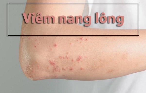 Triệt lông tay chân có ảnh hưởng gì không?