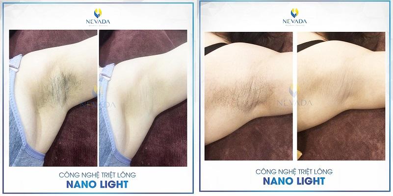 triệt lông vĩnh viễn có gây ung thư da không, triệt lông vĩnh viễn có gây ung thư, triệt lông vĩnh viễn có gây ung thư da