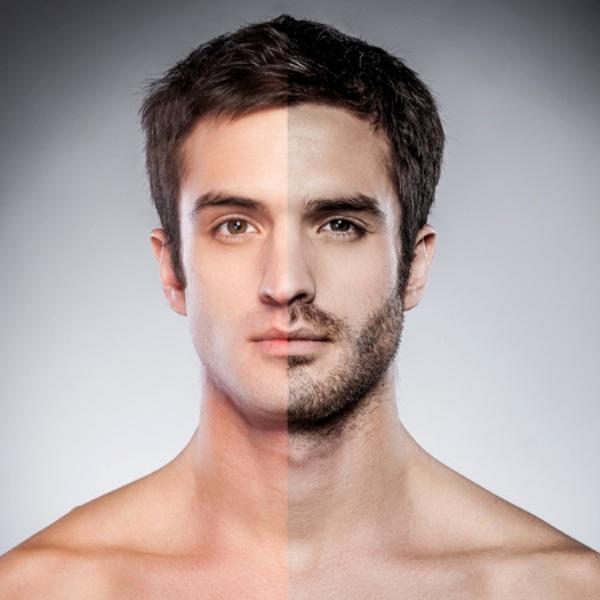 Spa triệt râu quai nón tốt nhất đấng mày râu nên lựa chọn
