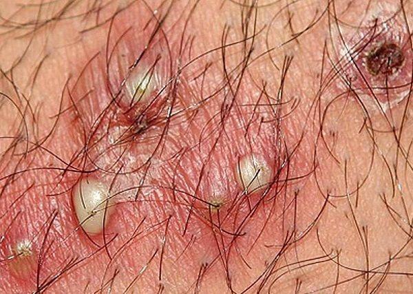 viêm lỗ chân lông ở vùng kín, viêm nang lông vùng kín có nguy hiểm không, chữa viêm nang lông vùng kín tại nhà, trị viêm nang lông vùng kín bằng dầu dừa, cách chữa trị viêm nang lông, viêm nang lông vùng kín bôi thuốc gì, viêm nang lông vùng kín webtretho, viêm nang lông vùng kín có lây không, viêm nang lông vùng kín khi mang thai, viêm nang lông vùng kín sưng to, hình ảnh viêm nang lông vùng kín, bị viêm nang lông vùng kín, cách chữa viêm nang lông vùng kín, trị viêm nang lông vùng kín, cách trị viêm nang lông vùng kín tại nhà, bị viêm nang lông ở vùng kín, bà bầu bị viêm nang lông vùng kín,viêm nang lông vùng kín, viêm nang lông vùng kín nữ, viêm nang lông vùng kín nam giới, viêm nang lông ở vùng kín, viêm lỗ chân lông vùng kín, viêm nang lông ở vùng kín nữ, cách chữa viêm nang lông, viêm chân lông vùng kín, bệnh viêm nang lông ở vùng kín