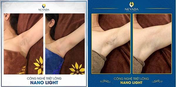 Kết quả triệt lông bằng công nghệ Nano Light