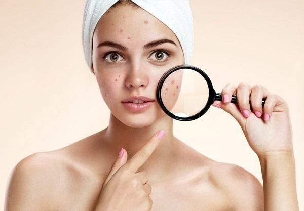 Da mụn có nên triệt lông mặt không? Câu trả lời từ chuyên gia