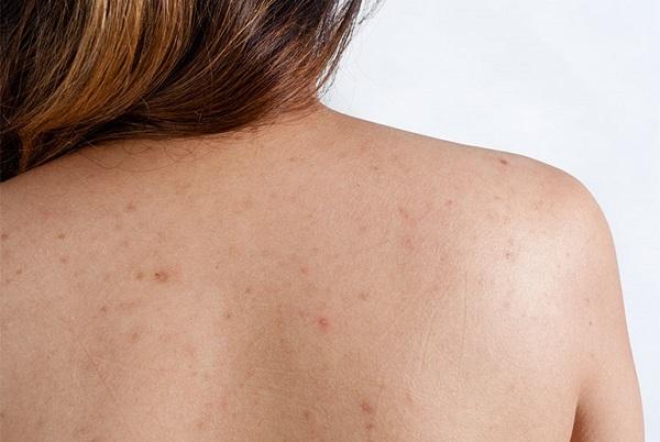 Triệt lông có hết viêm nang lông không   Phương pháp triệt tận gốc viêm nang lông cực kì an toàn