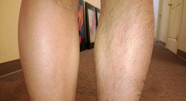 wax lông chân có hại không, wax lông chân có tốt không, wax lông chân có ảnh hưởng gì không