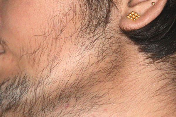 tẩy lông mặt cho nam giới, Tẩy lông mặt cho nam giới có hại không, tẩy lông mặt cho nam, tẩy lông mặt cho nam giới có nên không, tẩy lông mặt cho nam giới có làm sao không, tẩy lông mặt cho nam giới tốt không, tẩy lông mặt cho nam tại nhà