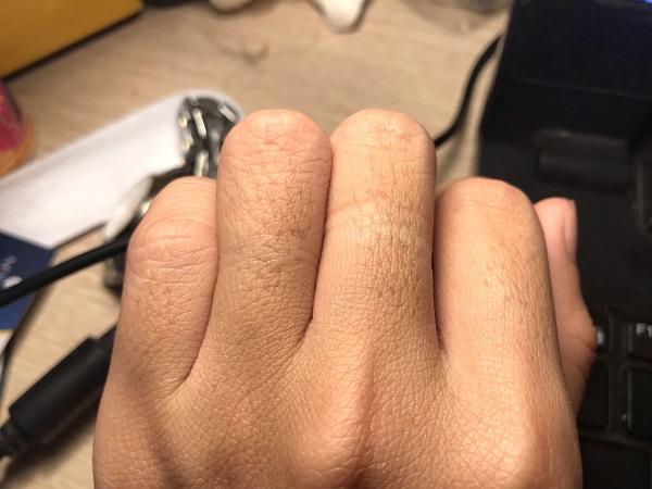 có nên cạo lông tay, có nên cạo lông tay nam, có nên cạo lông ngón tay