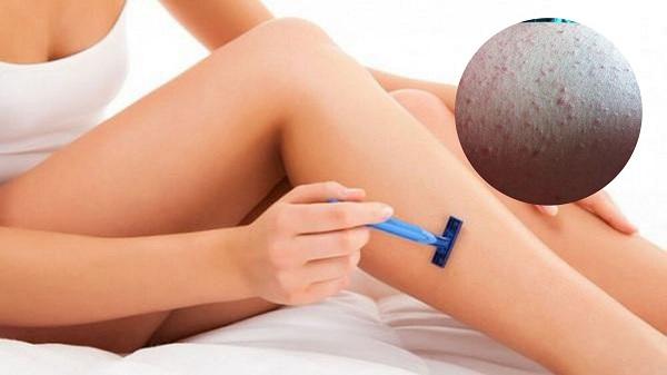 Tác hại của việc cạo lông chân | Những điều cần biết để tránh mang họa vào thân