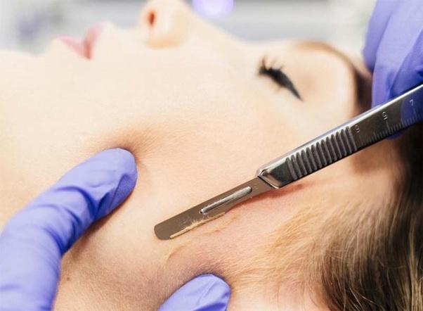 Có thể bạn đã học sai cách chăm sóc da mặt sau khi triệt lông chăng?
