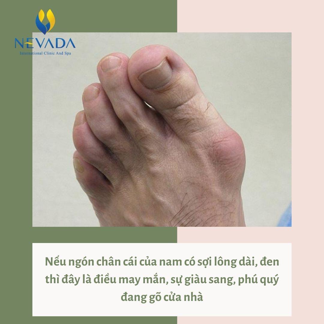 lông ở ngón chân cái nam, lông ở ngón chân cái, lông ở ngón chân