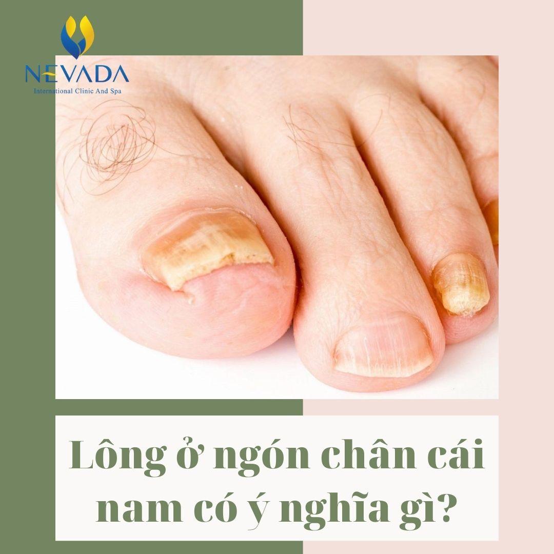 Tiết lộ cực shock từ chuyên gia về hiện tượng lông ở ngón chân cái nam
